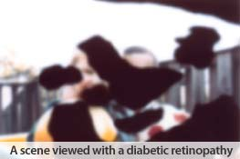 Eye health: Diabetic Retinopathy