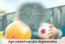 Eye health: Age=related Macular Degeneration